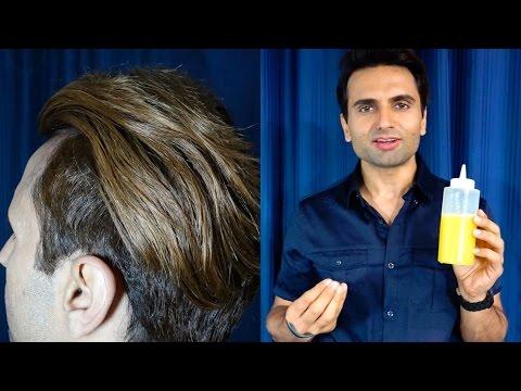 Male pattern baldness mula sa stress