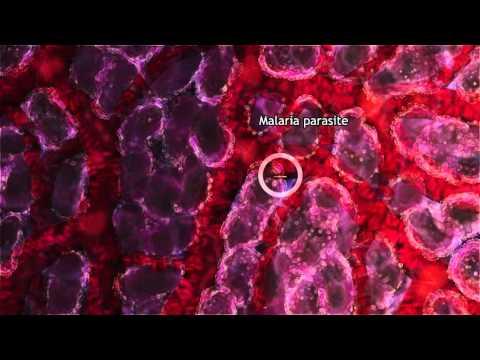 Kiütések parazitákkal az emberi testben