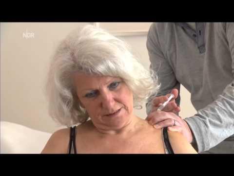 Nebliger Kopf mit zervikaler Osteochondrose