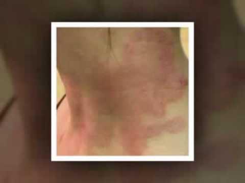 Eczema secco video fisso