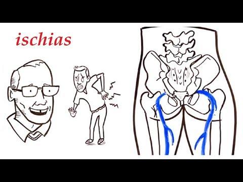 Die Rückenschmerz das häufige Urinieren bei den Männern