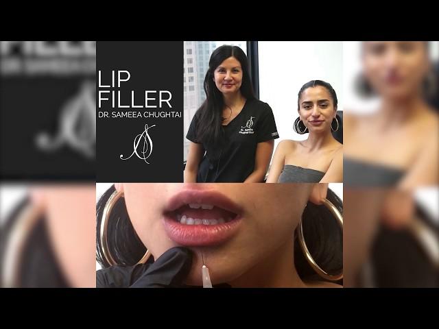 Lip Augmentation | Chicago, IL