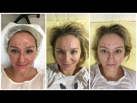 Отбеливание кожи пластическая операция