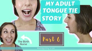 How to Stretch after ADULT TONGUE TIE Release   Part 6