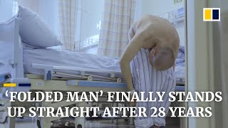'Folded man' stands up straight after 28 years - Story of Li Hua