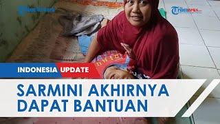 Sarmini, Ibu yang Rawat Anak Kelainan dan Suami Gagal Ginjal, Kini Dapat Bantuan dari Dinsos PMD