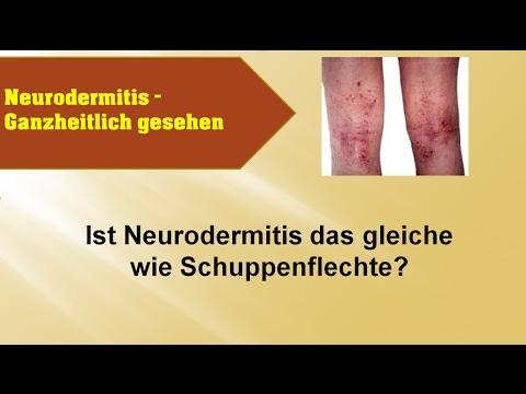 Die Behandlung der Schuppenflechte propolissom