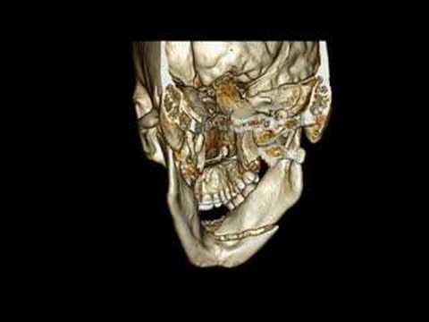 Ingrossamento dei linfonodi del collo dolore al collo