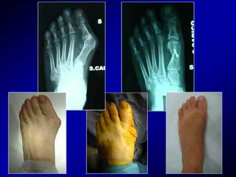 La deformazione di varusny di piede a bambini quello che è questo