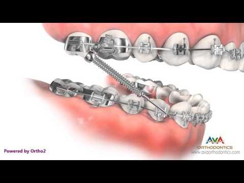 Orthodontic Treatment for Overjet (Overbite) - Forsus Appliance