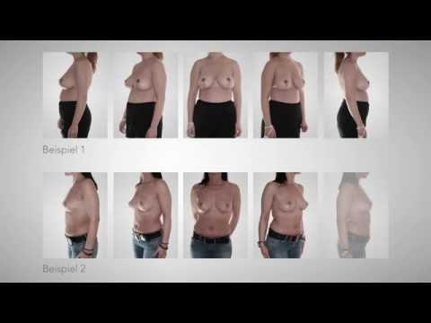 Die Erhöhung der Brust in belgorode
