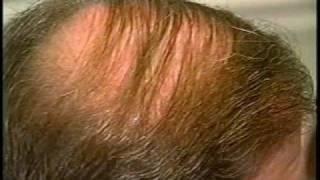 Hair Follicular Implants Part 2- Bill