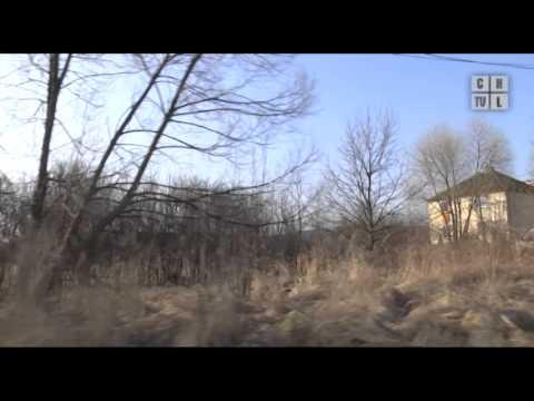 Leczenie palucha koślawego stóp Mińsku