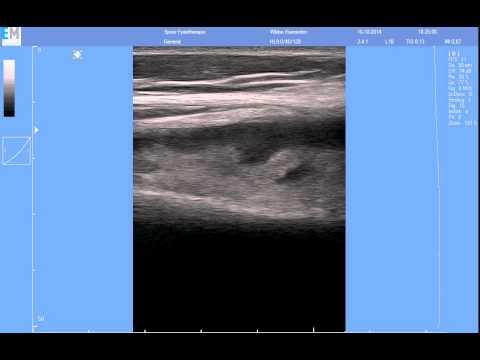 Zervikale Osteochondrose schmerzendes Gelenk der Hände und Füße