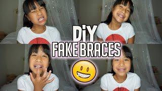 how to make safe fake braces - मुफ्त ऑनलाइन