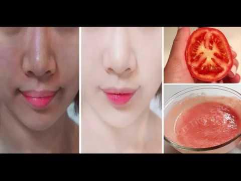 Les taches de pigment sous les lèvres