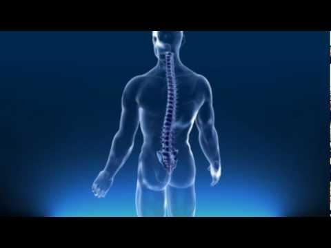 Die Osteochondrose koptschikowogo der Abteilung der Wirbelsäule
