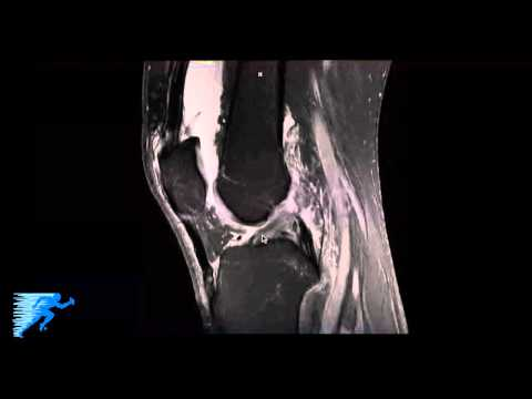 How to Read Knee MRI of FCL (LCL) Tear