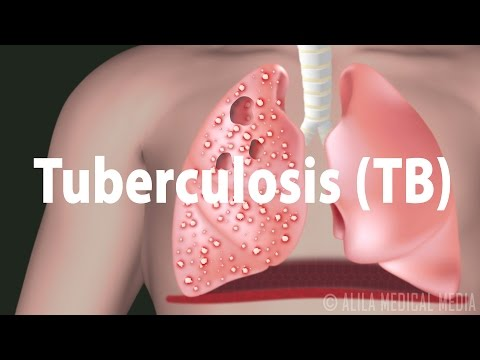 Video Tuberculosis (TB): Progression of the Disease, Latent and Active Infections.