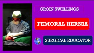 FEMORAL HERNIA - How To DIAGNOSE & TREAT/ Groin Swellings