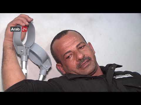 Palestine | Prosthetics Center Continues To Treat Amputees