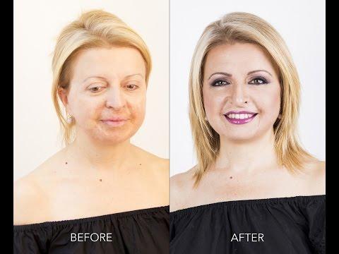 Se è possibile asciugare con perossido didrogeno una faccia da pigmentary nota in