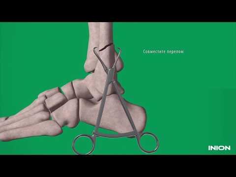 Перелом голени: хирургическая техника установки биодеградируемых пластин и винтов
