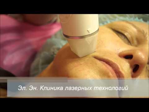 Лифтинг лица массаж фото