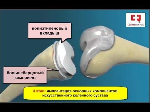 Остеохондроз шейного отдела базилярный синдром