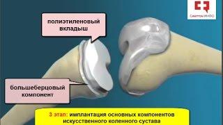 Эндопротезирование коленного сустава: основные принципы и этапы операции по замене коленного сустава