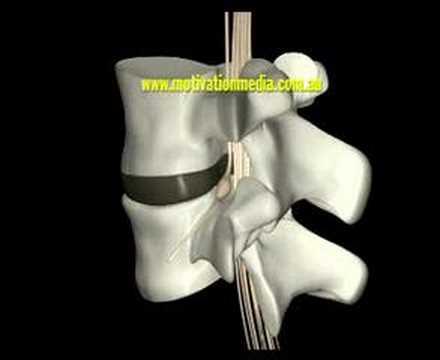 Kurieren Luxation des Kniegelenks