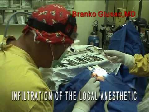 Rhinoplasty-Live-Nose-Job-Rhinoplasty-specialist-Croatia-Dr-Glusac