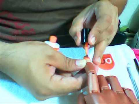 Ortopedia dla kości palca