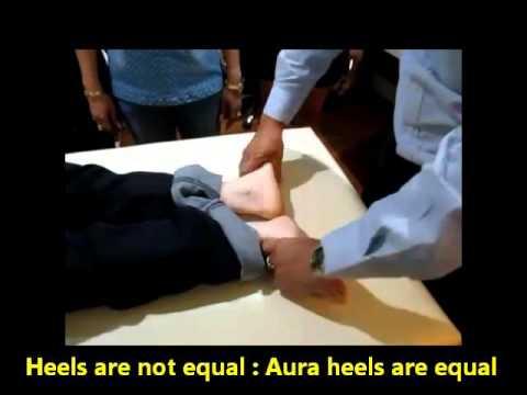 แตกหักของกระดูกเท้า