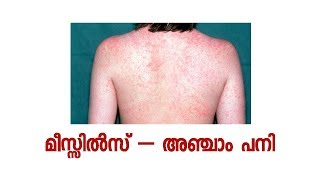 UNDERSTAND MEASLES - a small videos