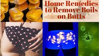 Home Remedies to Remove Boils on Butts