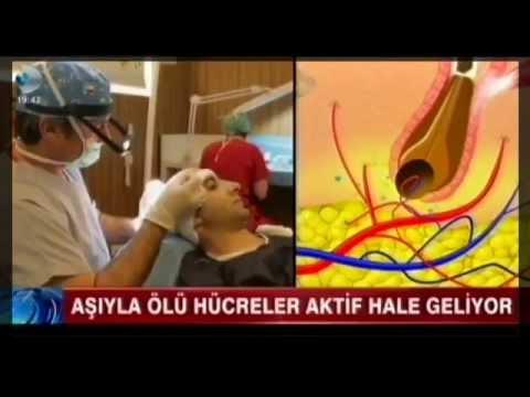 Kellik tedavisi için saç aşısı