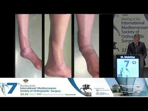M Malahias - Difficult lower limb infection in joint replacements and trauma to the lower limb from a plastic surgeon's point of view