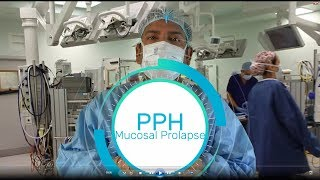 Procedure for prolapse and hemorrhoids (PPH)