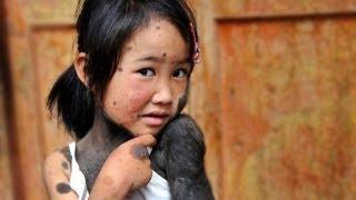 Смотреть онлайн Девочка-обезьяна у которой 60% тела покрыто шерстью