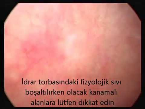 İdrarda kanama, Sistit (idrar torbasının iltihabı) kanlı (hemorajik) mesane iltihabı