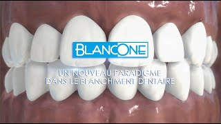 BlancOne réinvente le blanchiment dentaire (subtitles)