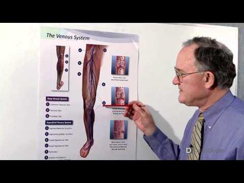 Consultazione della scansione doppia phlebologist di vene delle estremità più basse