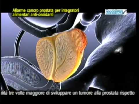 Massaggiatore prostata con aliekspress