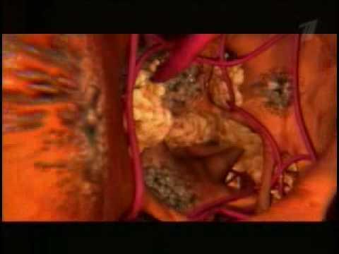 Расшифровка анализа пцр гепатит