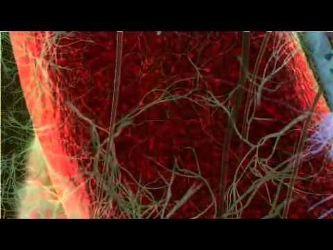 Video Penyakit Malaria
