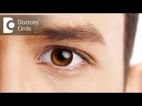 Cataract Surgery Procedure Cost Complications