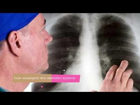 Emberi papillomavírus fertőzés az arcon