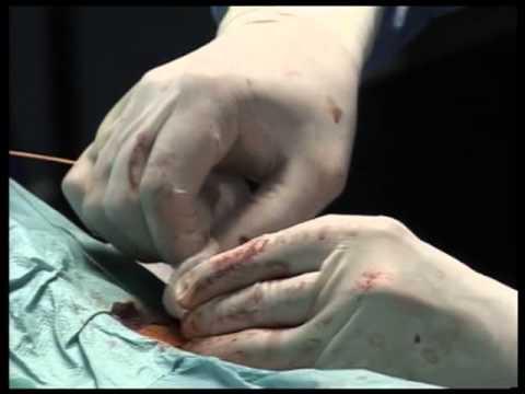 Varicosity di una parete posteriore di un utero