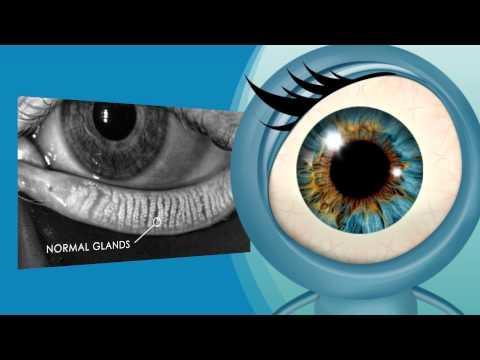 Is it Dry Eye or MGD?